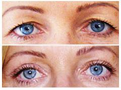 Korekcja powiek przed i po operacji