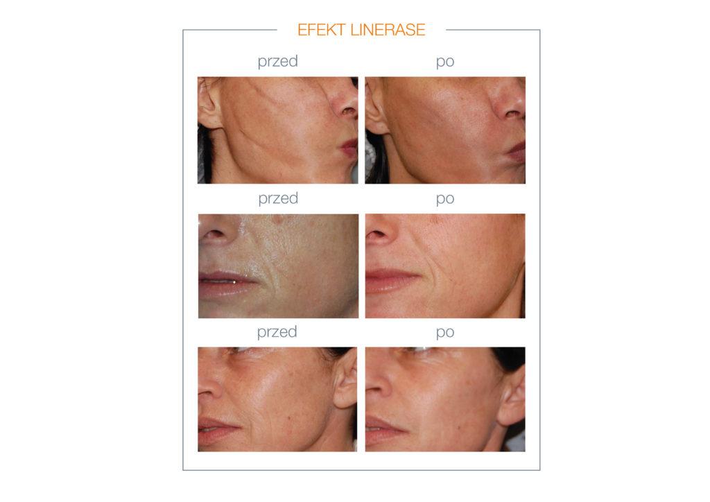 Efekt przed i po zabiegu kolagenem LINERASE