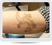 Usuwanie tatuażu z ręki - przed