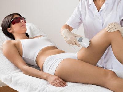 Depilacja laserowa - usuwanie owłosienia z nóg - wizualizacja
